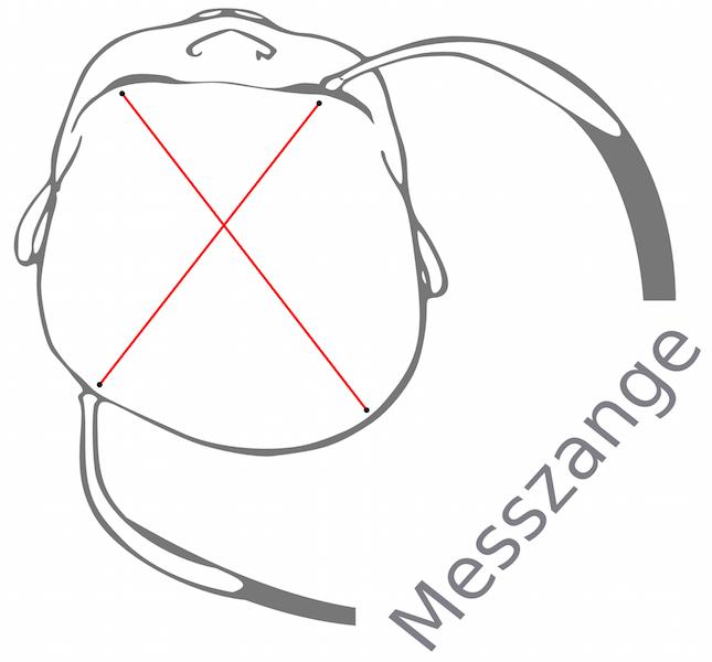 Vermessen der Baby Kopfverformung. Ermittlung des CVI beim Plagiocephalus