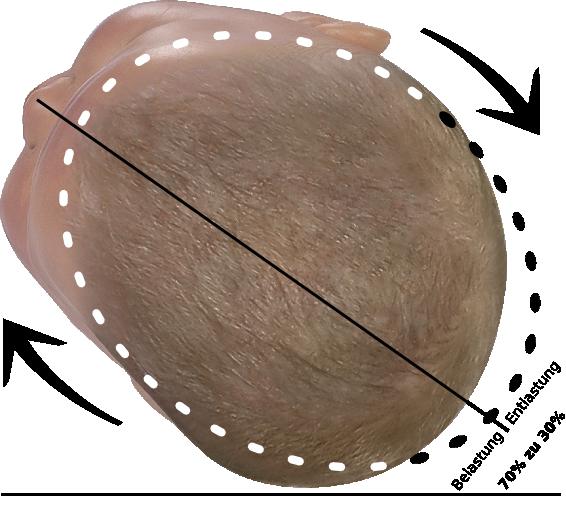 Baby Kopf zu zwei drittel in Korrekturposition bei Plagiocephalus