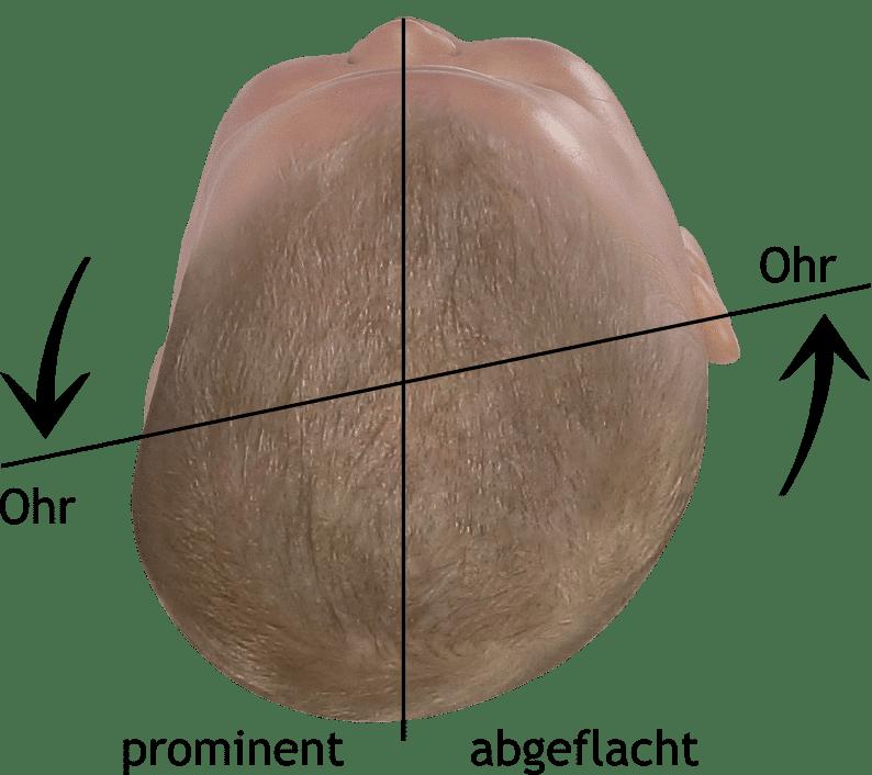 Blick auf den Babykopf zur Beurteilung der verschobenen Ohrachse und Quadranten des Hinterhaupts