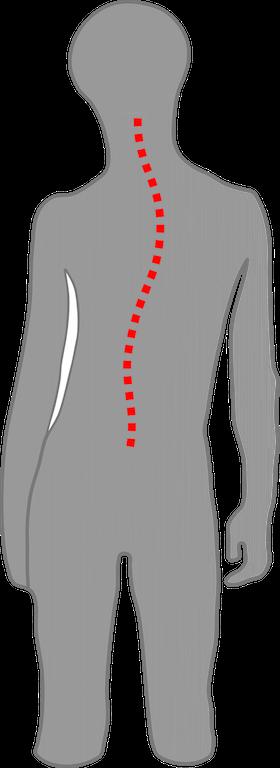Kind mit skoliotischer Fehlhaltung