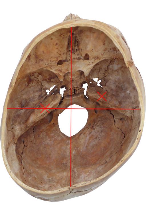 Echter Schädel mit Plagiocephalus und verschobenen Gleichgewichtsorganen