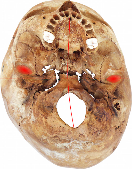Echter Schädel Plagiocephalus mit verschobenen Kiefergelenken