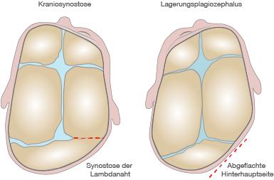 Differentialdiagnose Lagerungsplagiozephalus und Kraniosynostose