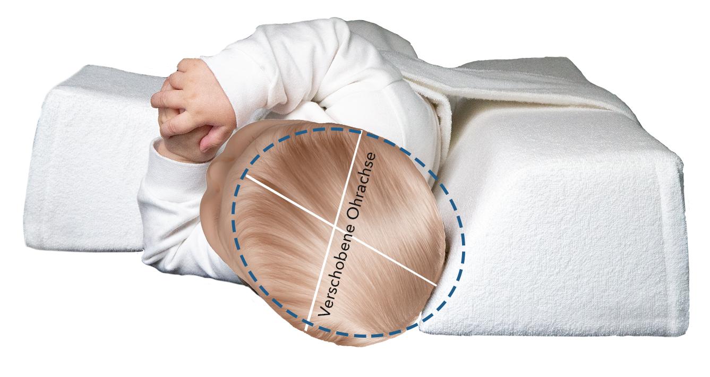 Produktbild Kopfansicht Seitenlagerungsschiene VARILAG Baby Lagerungskissen