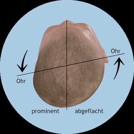 Évaluation de la forme de la tête chez les bébés - plagiocéphalie avec déplacement de l'axe de l'oreille