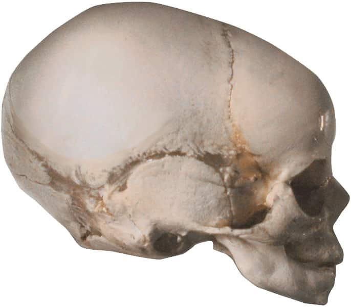 Asymmetrie Säugling Schädel