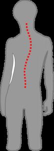 Kind skoliotische Fehlhaltung
