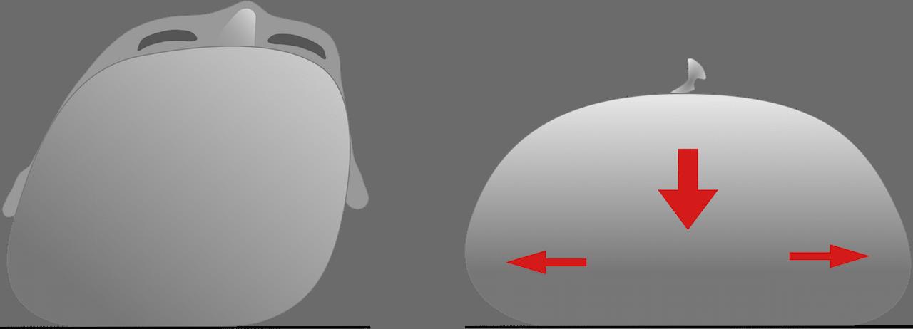 lagebedingte Deformation der Kopfform