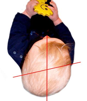 lagebedingte Plagiocephalus Babykopf