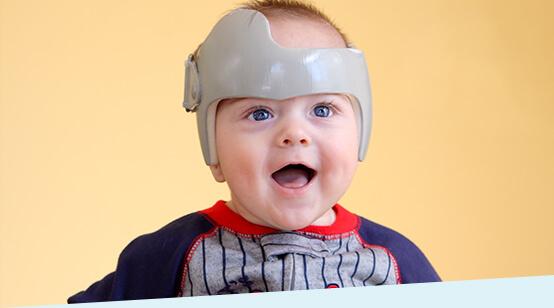 Helmtherapie Baby Kopfform