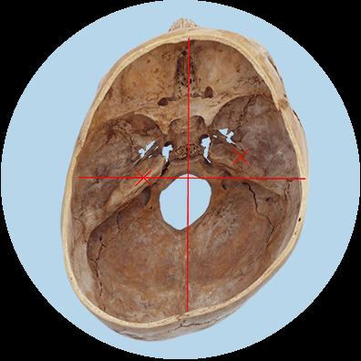 Folge des Plagiocephalus - Verschobene Gelichgewichtsorgane