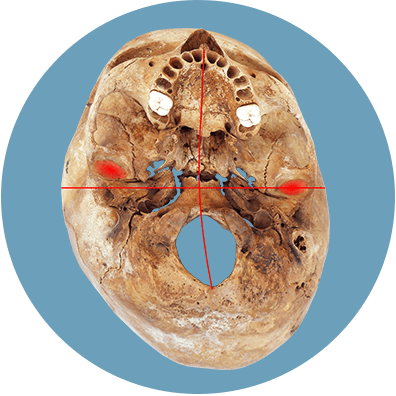 Folge des Plagiocephalus - Verschobene Kiefergelenke