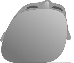 plagiocephalus