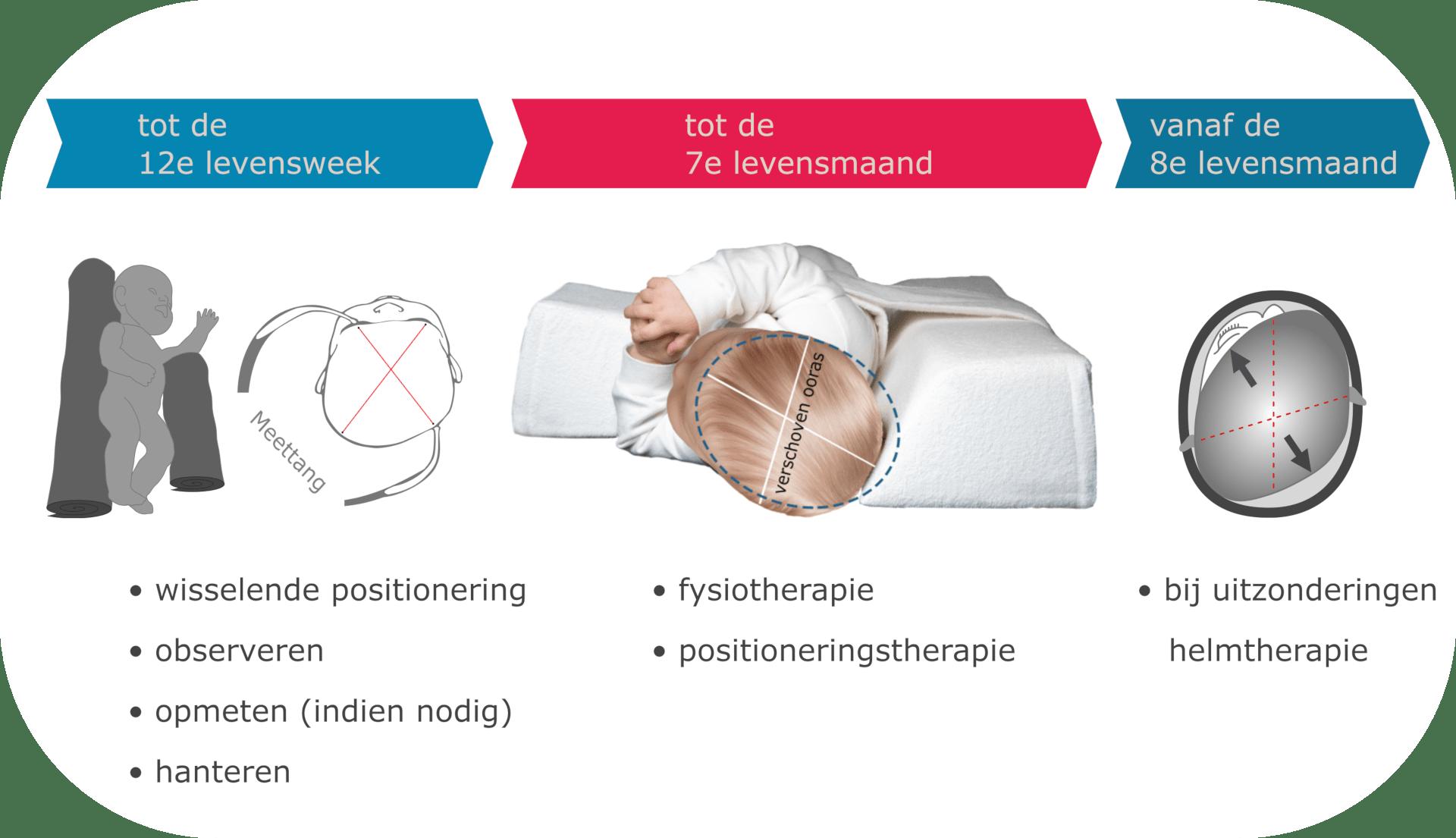 tijdlijnis een aanbeveling voor een fase-passende interventie plagiocefalie