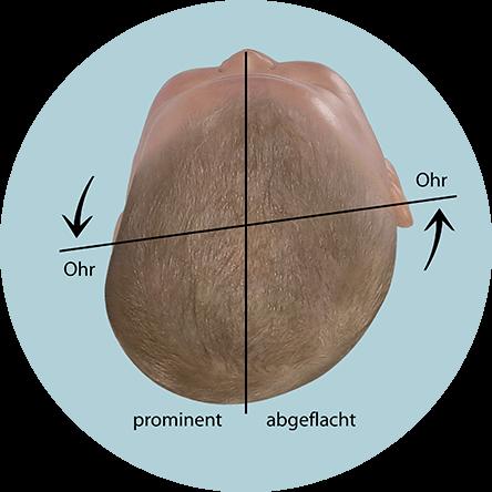 Beurteilung der Kopfform beim Baby - Plagiocephalus mit verschobener Ohrachse