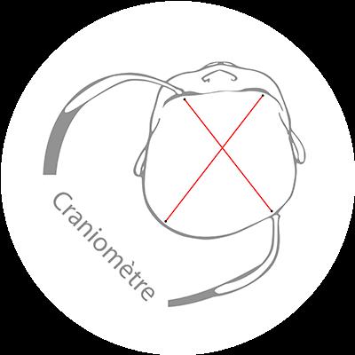 Mesure de la forme de la tête du bébé déformée, détermination de la différence des diagonales de la tête