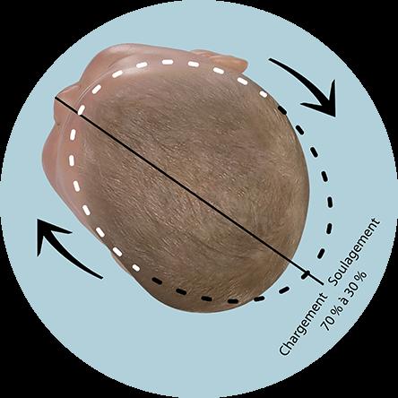 plagiocéphalie position corrective tête bébé