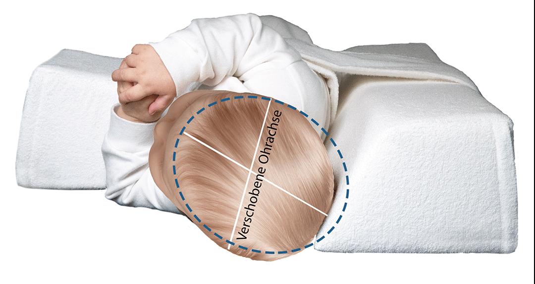 verschobene Ohrachse Baby