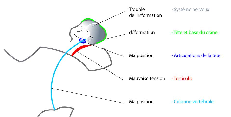 Asymétrie posturale bébé