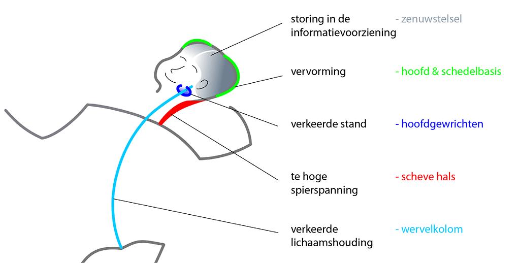 Houdingsasymmetrie baby
