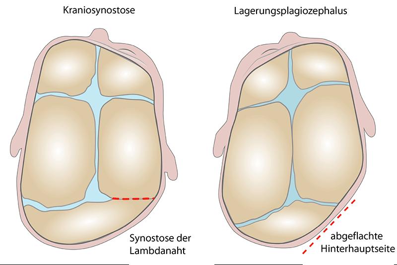 lagebedingter Plagiocephalus