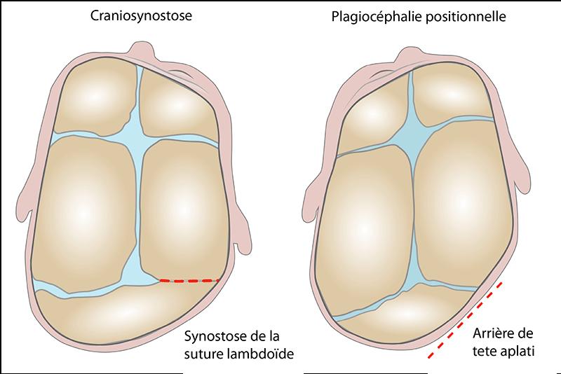 Plagiocéphalie positionnelle