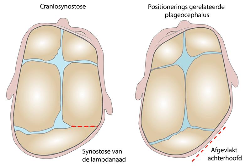 Positionerings gerelateerde plagiocephalus